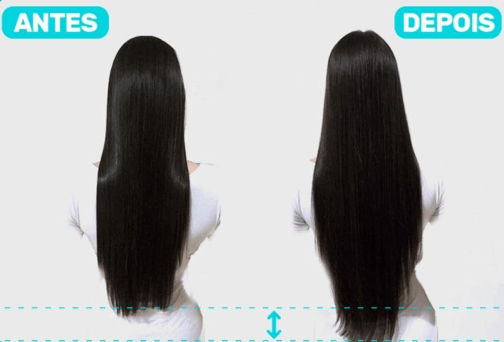 Femini Hair antes e depois