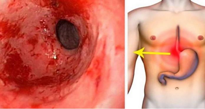 gastrite sintomas e tratamento