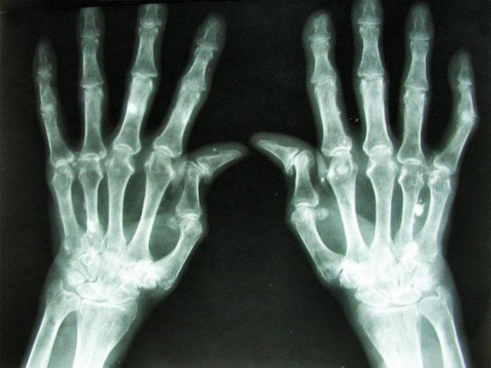 Artrite dignostico