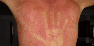 Manchas vermelhas na pele