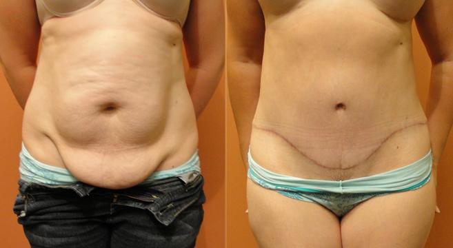 abdominoplastia antes e depois1