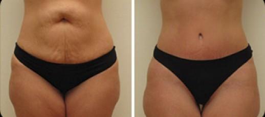 abdominoplastia antes e depois3