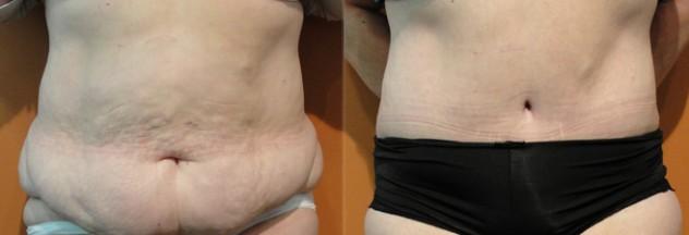 abdominoplastia antes e depois5