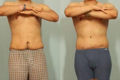 abdominoplastia antes e depois6