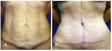 abdominoplastia em ancora antes e depois