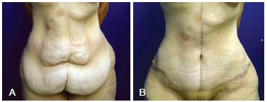 abdominoplastia em ancora antes e depois1