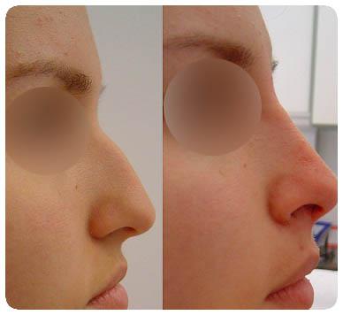 bioplastia nariz antes e depois 01