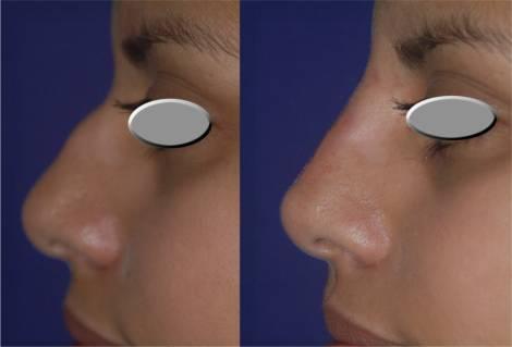 bioplastia nariz antes e depois