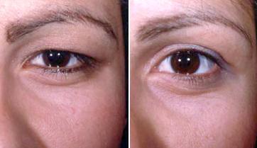 blefaroplastia antes e depois 04