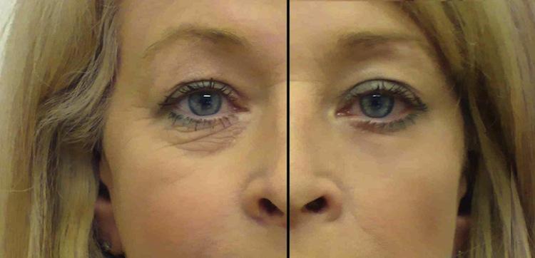 blefaroplastia antes e depois