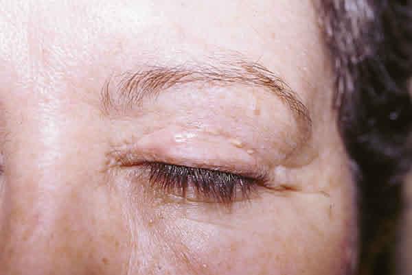 blefaroplastia cicatriz