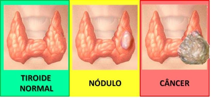 tireide com nodulos