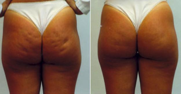 mesoterapia Antes e depois 02