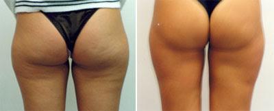 mesoterapia Antes e depois 03
