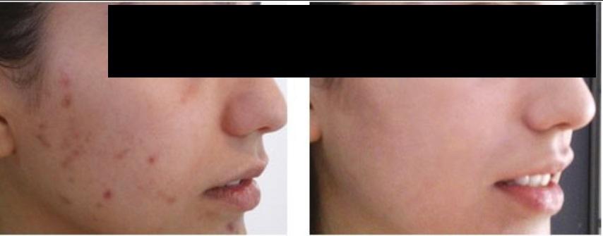 peeling químico antes e depois 03