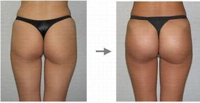 lipoenxertia antes e depois