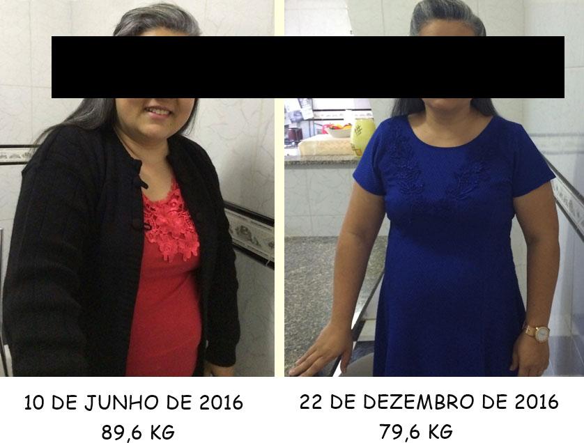 sibutramina antes e depois