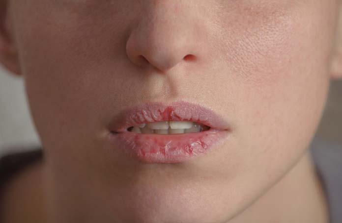 Consequências da desidratação boca e pele secas