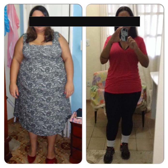 Antes e depois da cirurgia bariátrica